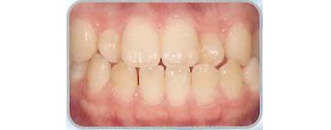 歯科医院にて検診説明