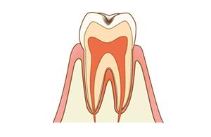 1.小さい虫歯?