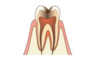2.大きい虫歯