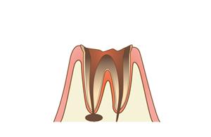 3.神経まで進行した虫歯?