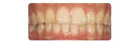 口腔内の診断・説明
